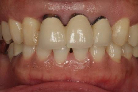 歯周病と審美 歯周外科をおこない歯肉の状態を改善した症例