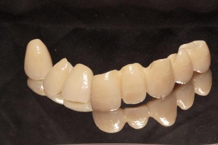 歯周病と審美Part2 歯肉を移植して審美性を向上させた症例