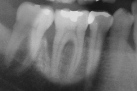 再生療法 エムドゲインによる再生療法で歯周病を治しました