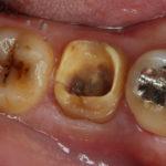 ナイスパス!PRGF(成長因子)を用いた歯牙移植