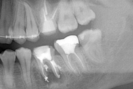 歯の移植 PRGF(成長因子)を用いて再生を促した症例