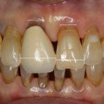 審美修復 抜歯したにもかかわらず歯ぐきを増やすことができた症例