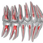歯の痛み Part 1 歯の神経