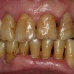 歯の治療で若返り! 男性のホワイトニング率は意外と高い