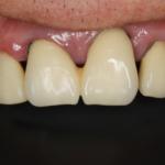 白くてきれいな歯