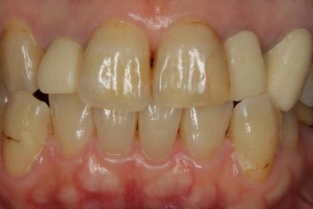 ホワイトニング 歯冠長延長 ダイレクトボンディング オールセラミック