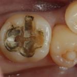 銀歯の治し方 ダイレクトボンディングのステップ