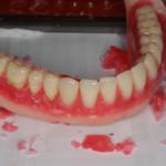 入れ歯製作中