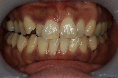 歯ぐきの漂白