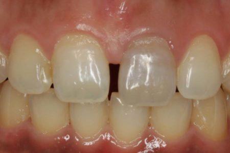 歯ぐきが伸びる?