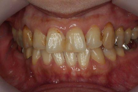 歯を白くするには