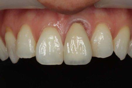 デリケートな歯ぐきを奇麗に仕上げる