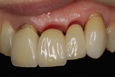 歯ぐきの形を奇麗にする
