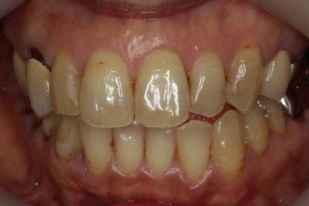 奥歯はインプラント、前歯はホワイトニングで綺麗になりました
