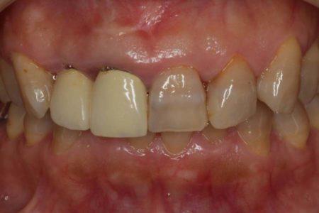 テトラサイクインによる変色歯を含んだ難しい修復