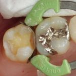 その日のうちに銀歯を白く