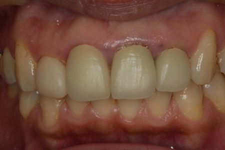 歯茎の形(歯茎の審美)を整えバランスのとれた綺麗な歯並びにしました。