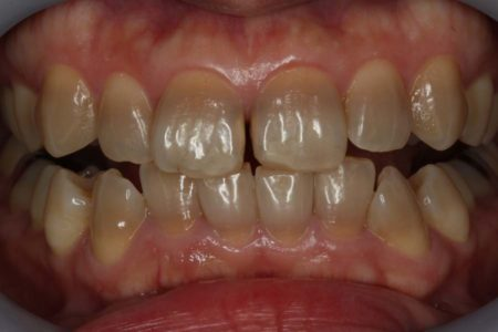 難しい変色歯のホワイトニングの3年後(テトラサイクリン変色歯)
