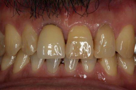 歯を白くしました