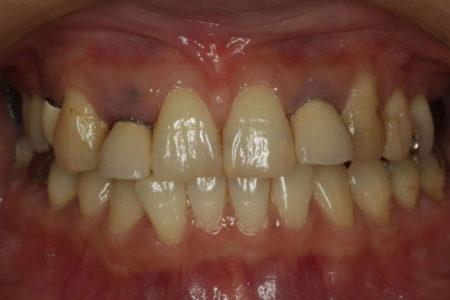 出っ歯気味の歯が綺麗なスマイルに