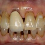歯を引っ張りだして歯茎を作る