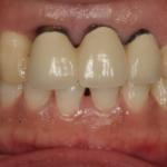 歯周病の患者さんの審美修復