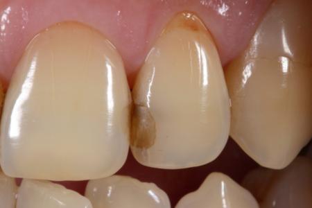 小さなゴマのような虫歯