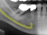 骨を再生させインプラントを入れた症例