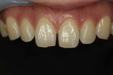 Direct Bonding on Split Teeth
