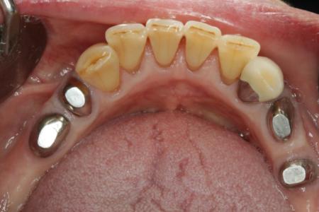 磁石を使って入れ歯を固定しています