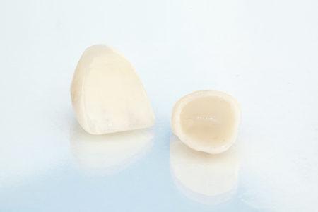 歯科用セラミックの特徴とは