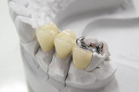 銀歯とセラミックを比較してみました